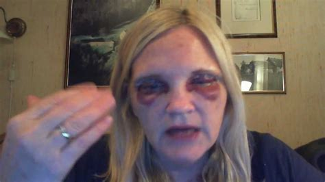 2 Days Since Eyelid surgery and Eye Brow lift Surgery