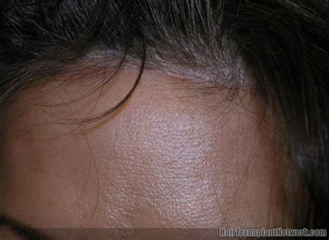 Benefits of the Trichophytic Closure for Hair Transplant