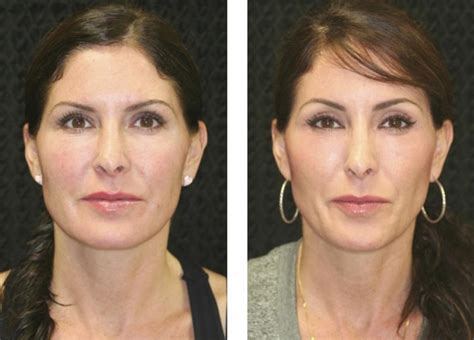 Endoscopic Brow Lift Fort Lauderdale | Before And After