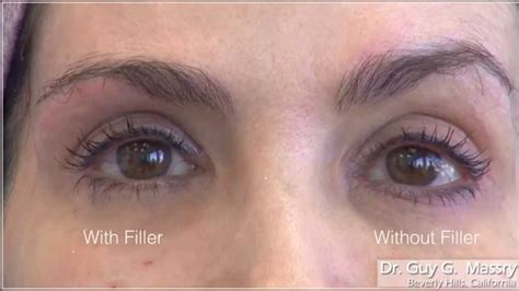 Brow and Upper Eyelid Filler Injections with Dr