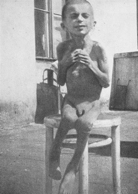 A starving child poses on a stool in a hospital in the